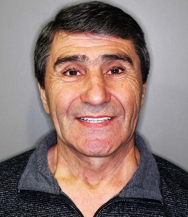 Nikal Dental Implant Patient